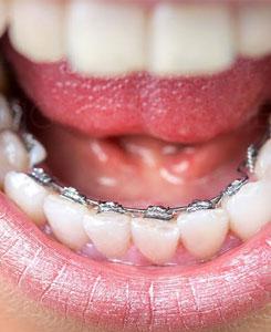 Qu\'est ce qu\'un appareil dentaire de nuit ?
