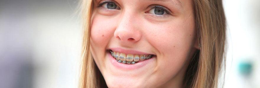 Un appareil dentaire