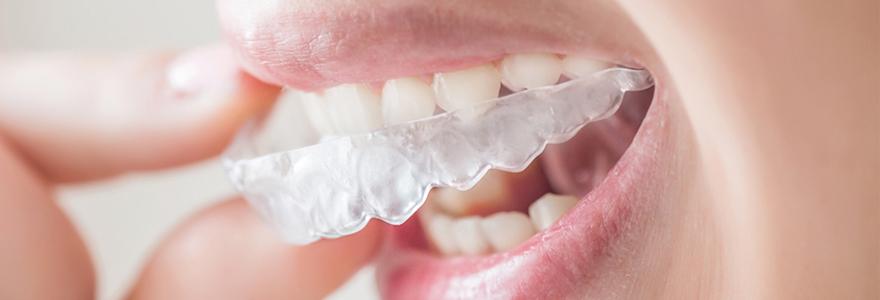L'orthodontie invisible